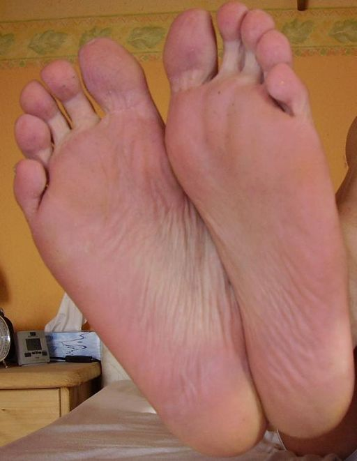 Foot warts contagious