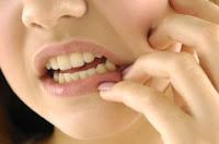 Pengobatan Kanker Mulut Tanpa Operasi