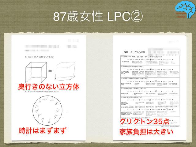 87歳女性、LPCの時計描画テストと透視立方体模写。