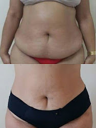 Tratamento antes e depois da Criolipólise.