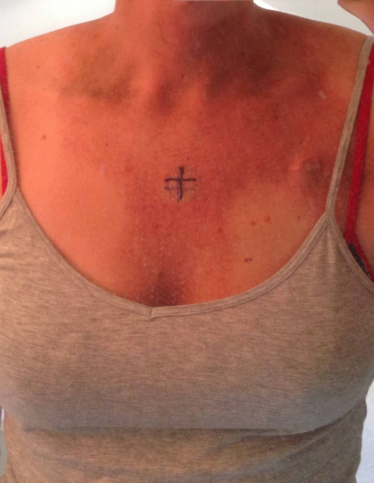 Displaying 19 gt  Images For - Thyroid Cancer Scar Jewelry   Thyroid Cancer Scar Jewelry