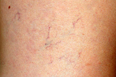 Natural treatment to prevent varicose veins