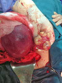 Lt.ovarian cystic teratoma discovered during cesarean section