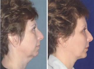 liposuccion cuello