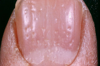Fingernail nail pitting psoriasis