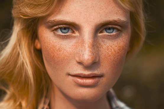 Bleachings da pessoa depois de bronzeado do sol