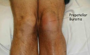 Knee Bursitis illustrating Swollen Knee Joint