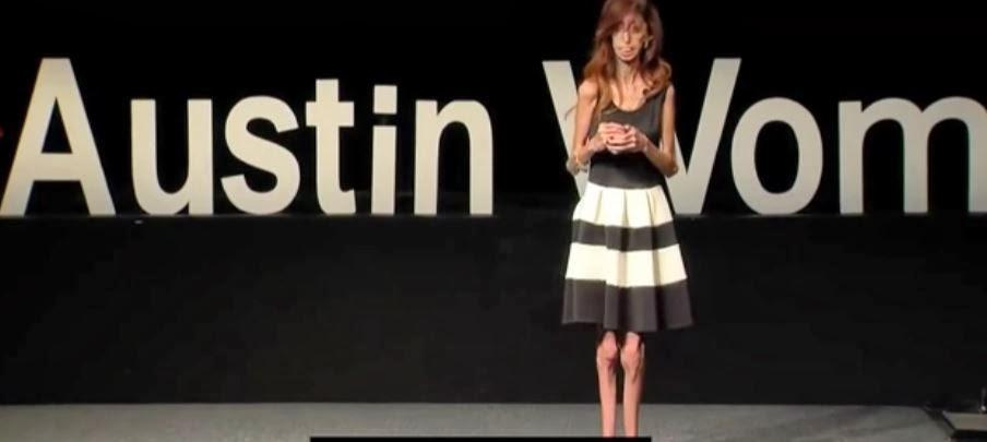 http://www.upsocl.com/inspiracion/la-llamaron-la-mujer-mas-fea-del-mundo-su-reflexion-sobre-eso-es-asombrosa/#