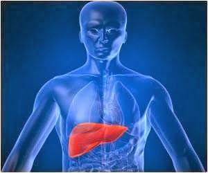 Obat Liver Herbal