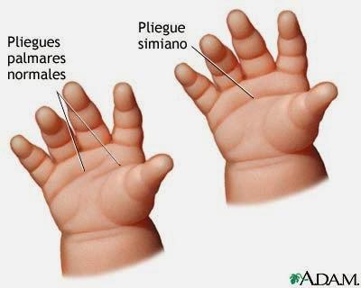 pliegues normales de la mano en un individuo normal y en uno con síndrome de Down