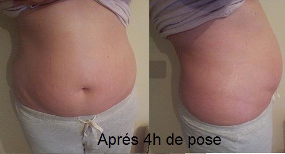 it-work-wrap-minceur-cosmétique-avant-après