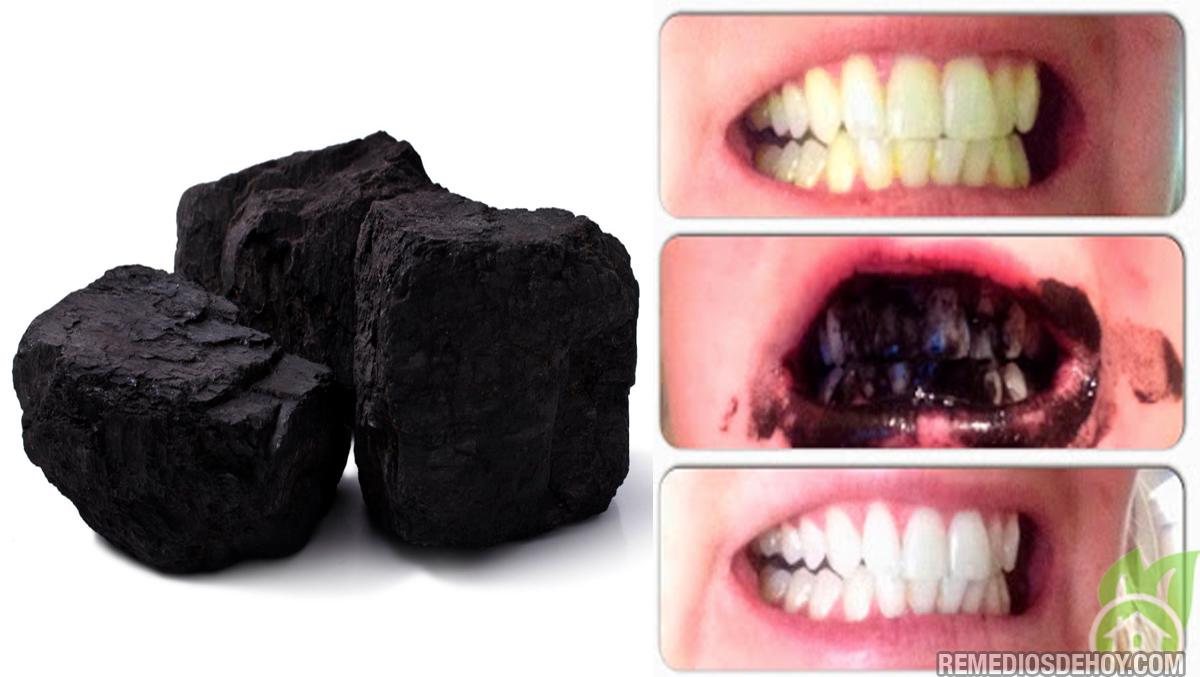 La mejor manera de blanquear los dientes y quitar el sarro naturalmente remedios de hoy - Como blanquear los dientes en casa ...