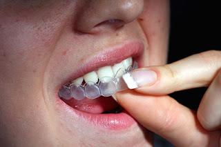 led отбеливание зубов