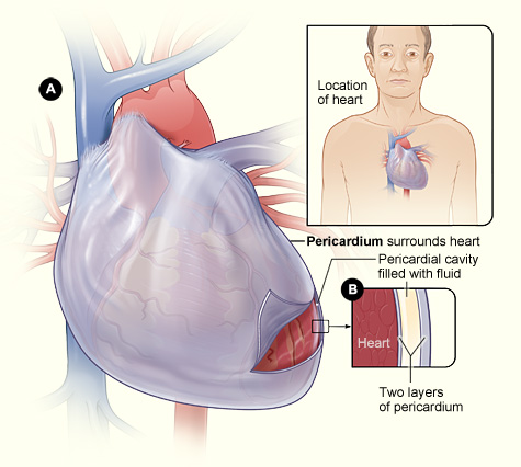 An Unexpected Error Living Without A Pericardium