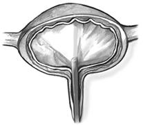 Vejiga neurogena espastica y flaccida
