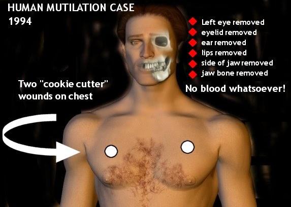 Brazil Human Mutilation