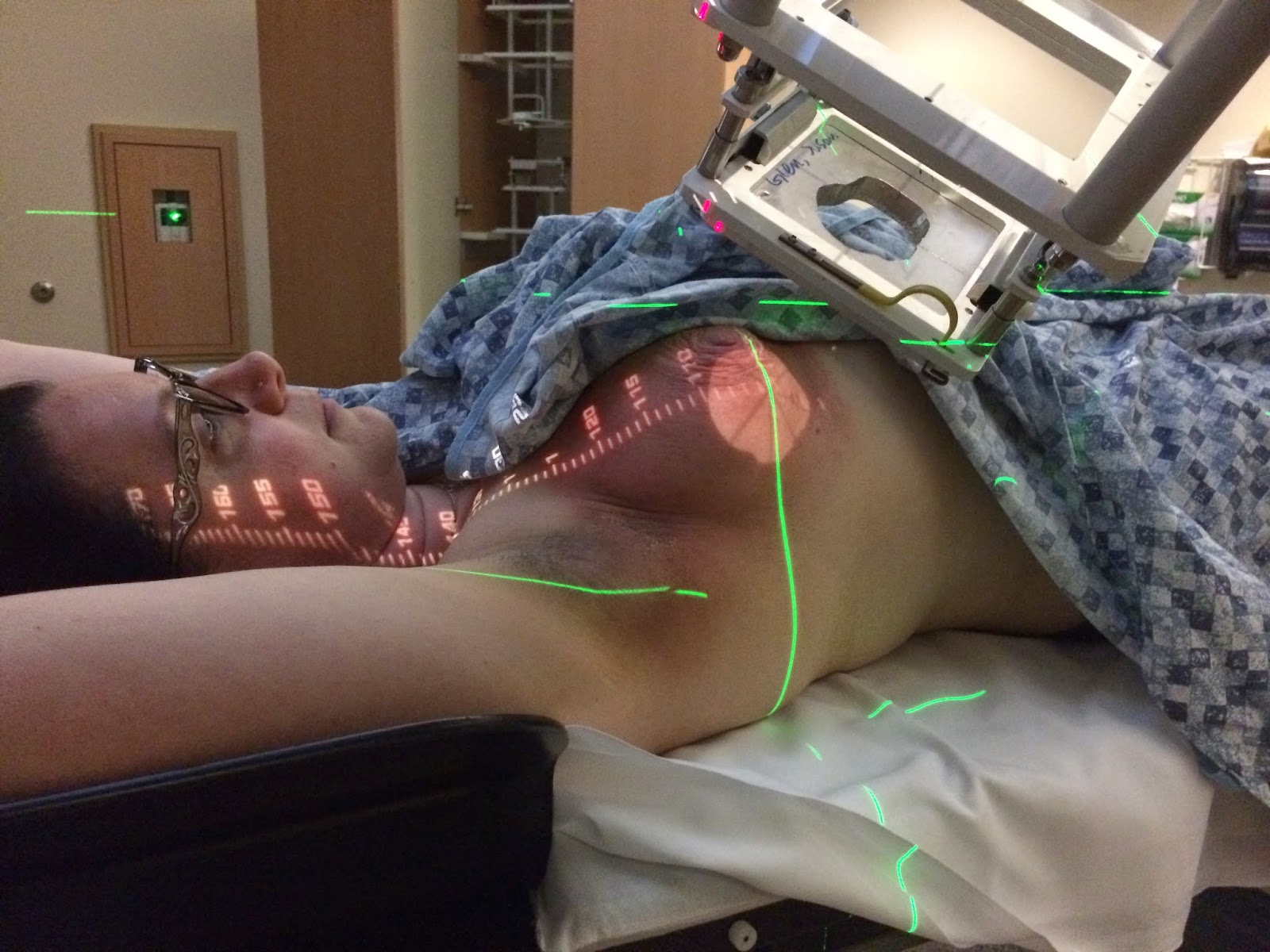 Photon Torpedo Attachment Thing To The Radiation Eye They Added The Cut Out Plate Designed To Mimic The Shape And Position Of My Lumpectomy Bedand