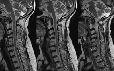 MRI Cervical Spine Disc Degeneration