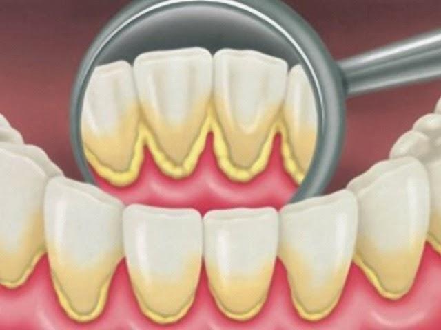 Tips dan Cara Sehat Mencegah Terbentuknya Karang Gigi
