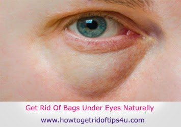 Cure Tired Eyes Naturally