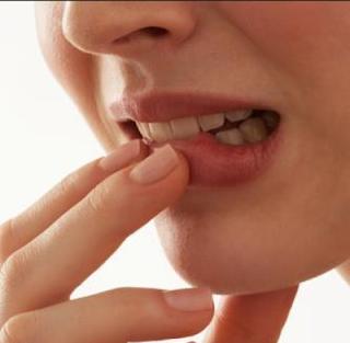 Bibir pecah-pecah
