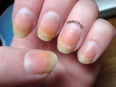 Nail Polish Stained My Nails How To Fix Them