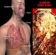 Pengobatan Alami Penyakit Kanker Paru-Paru
