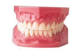 Cara Merapikan Gigi Tanpa Menggunakan Behel