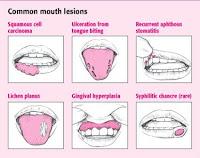 Sariawan pada mulut dan lidah serta bibir