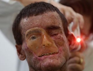 real life XP prosthetic face as seen in boardwalk empire