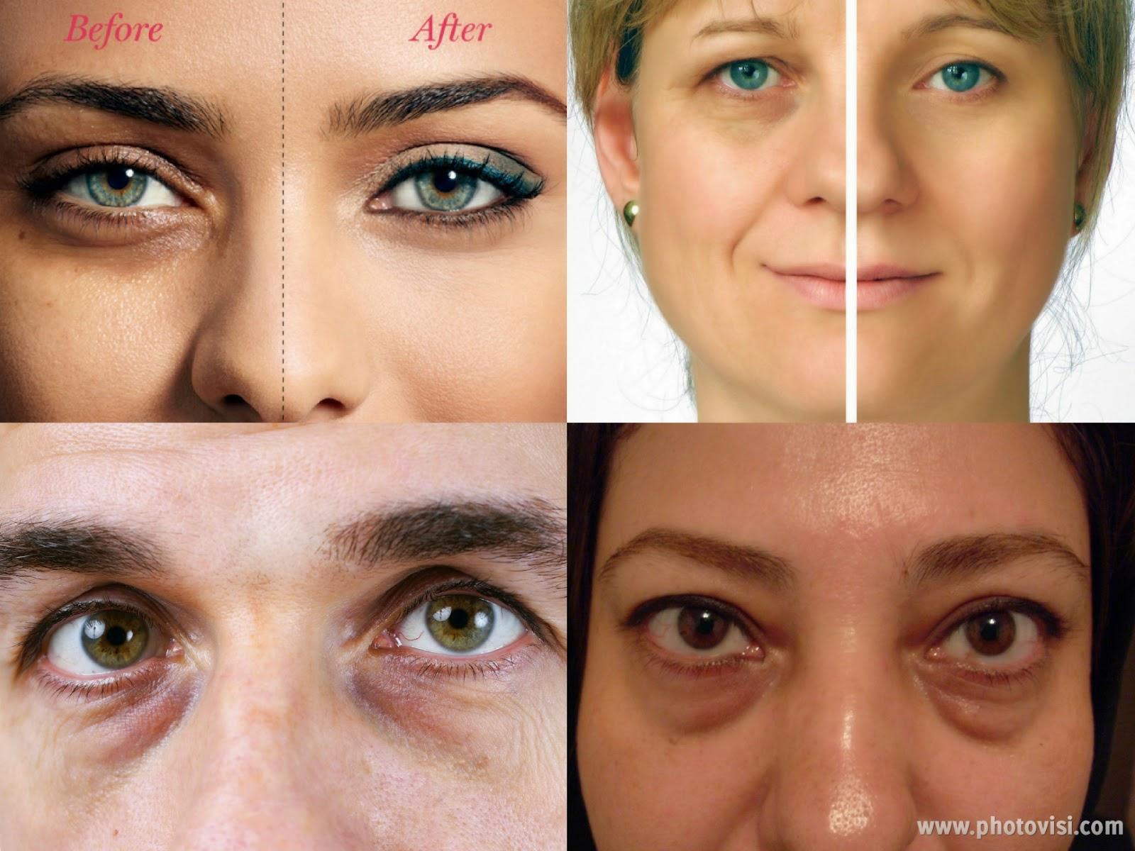 كيفية التخلص من الهالات السوداء تحت العينين بشكل نهائي