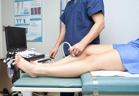 o ultrassom doppler colorido venoso dos membros inferiores ou duplex ultra-som é o principal exame no diagnóstico das varizes