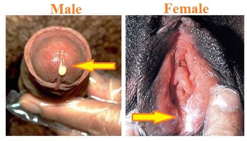 Gonorrhea urethral pus or purulent discharge