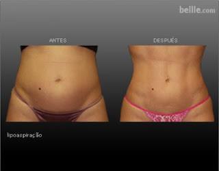 Abdominoplastia Fotos Antes E Depois A Uma Cirurgia