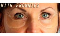 Parches de colágeno Frownies