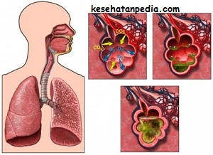 Pengobatan penyakit paru-paru basah