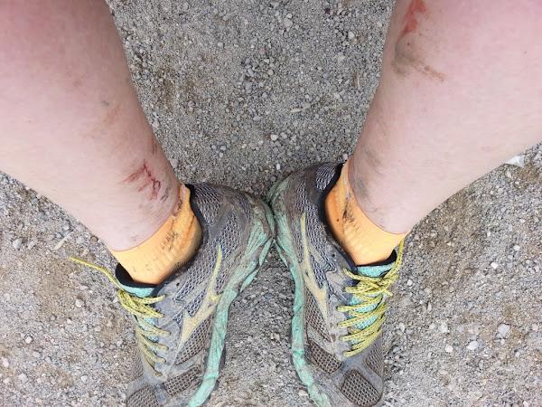 La course à pied, ce sport ingrat.