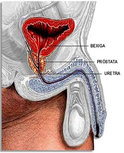 Câncer de Prostata, deixe preconceito de lado