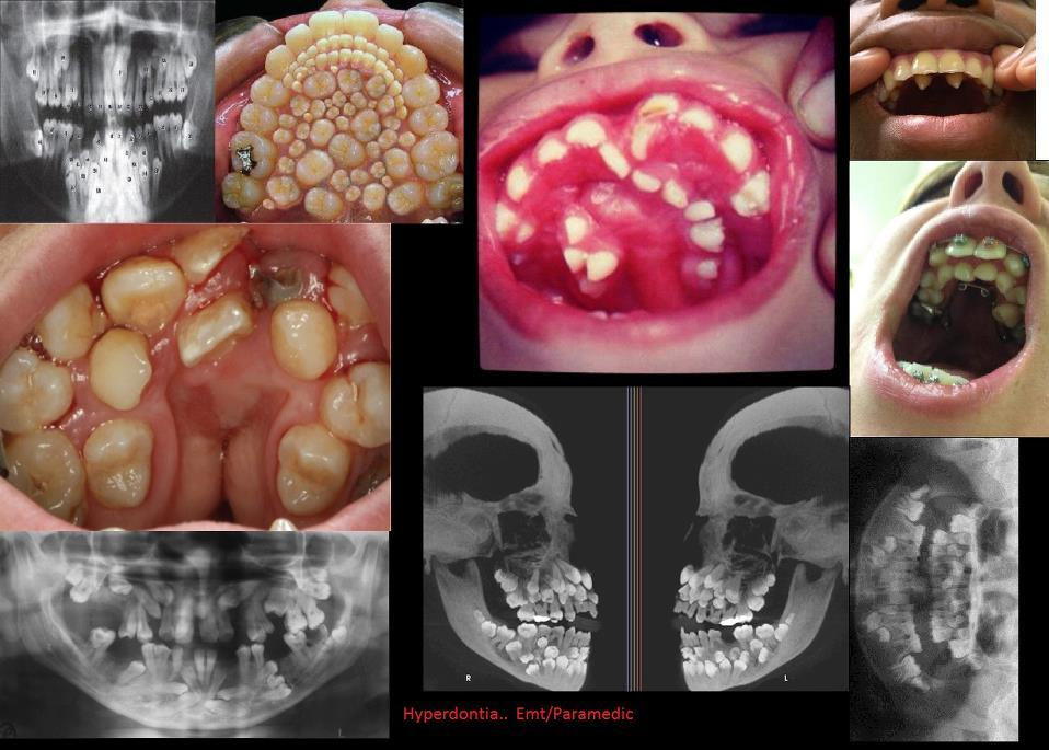 Hyperdontia Fake hyperdontia photo