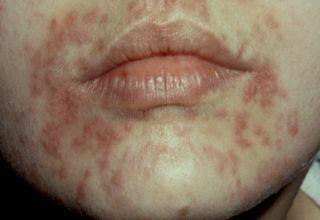 La maladie de dermite séborrhéique est une dermatose inflammatoire cutanée fréquente (observée dans 3% à 5% de la population) se présentant sous la forme de plaques rouges, recouvertes de squames grasses et jaunâtres, plus ou moins prurigineuses, prédominant dans les zones riches en glandes sébacées, les zones séborrhéiques. On la rencontre à la fois chez l'adulte et le nourrisson, chez qui elle se signale par les classiques « croûtes de lait » dans le cuir chevelu et un érythème fessier.