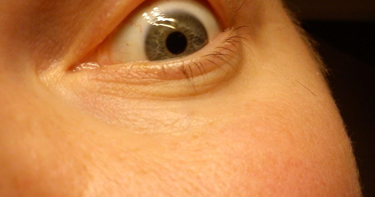 blåsor under ögat
