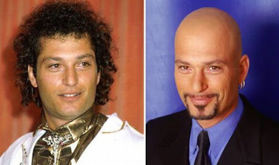 Balding Celebrities Seen On www.coolpicturegallery.us