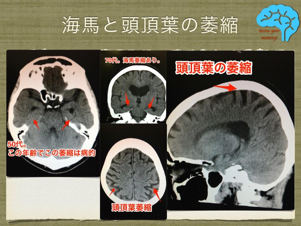 アルツハイマー型認知症の典型的頭部画像