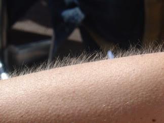 Chelsea Wolfe Piel-de-gallina