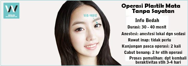 Operasi plastik mata tanpa sayatan di Wonjin