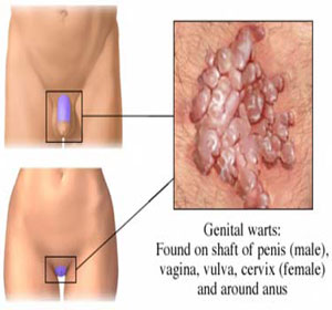 Sex with internal vaginal warts