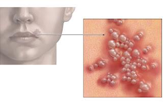 Herpes simplex: mod de transmitere, simptome, leacuri babesti