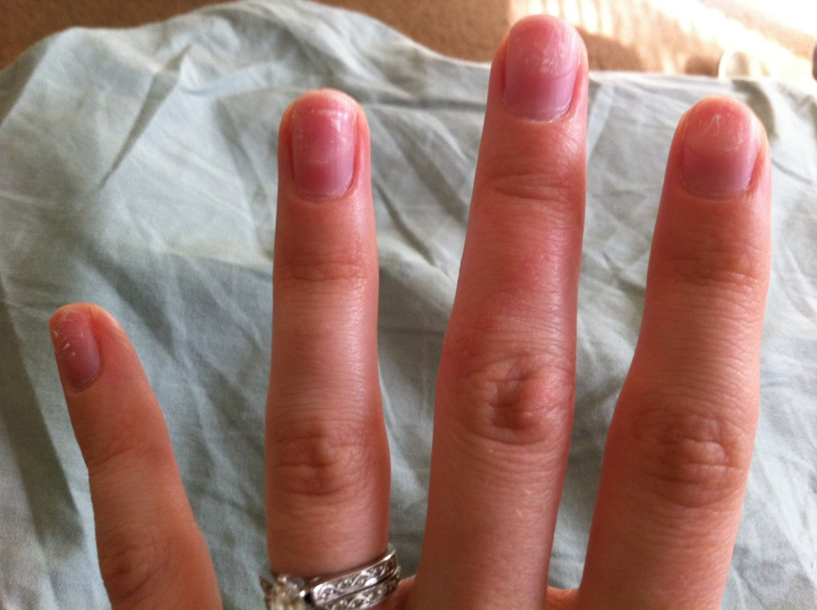 Queen of poepp how to remove acrylic or gel nails from home for Acrylic nail prices at a salon