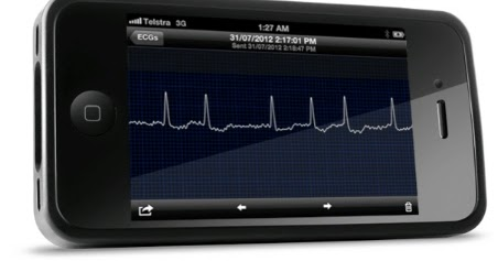 IPhone App Takes ECG Reading For Monitoring Heart And
