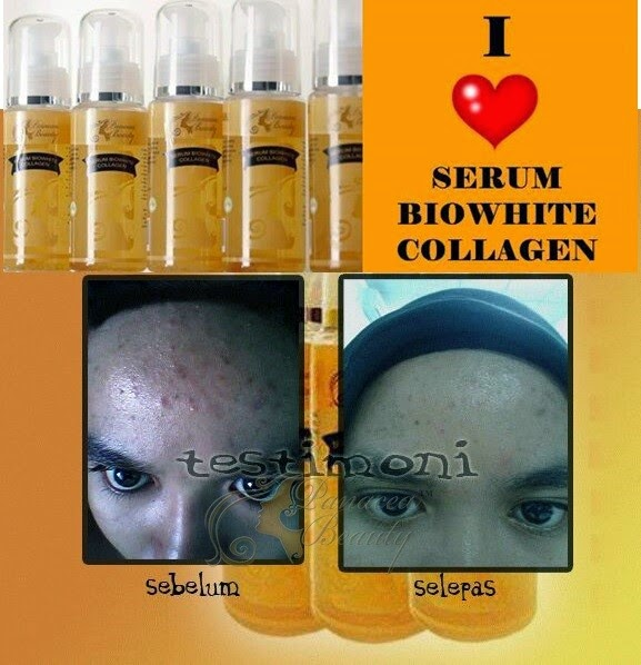 serum blowhite collagen